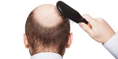 Cara Mudah Mencegah dan Mengatasi Kebotakan Rambut