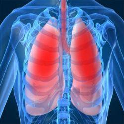 Imunoterapia como primeira opção de tratamento no câncer de pulmão