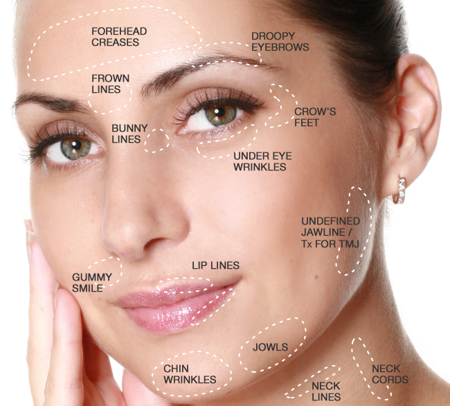 Health And Wellness Tips Botox Cost Of Dermal Fillers And Botox
