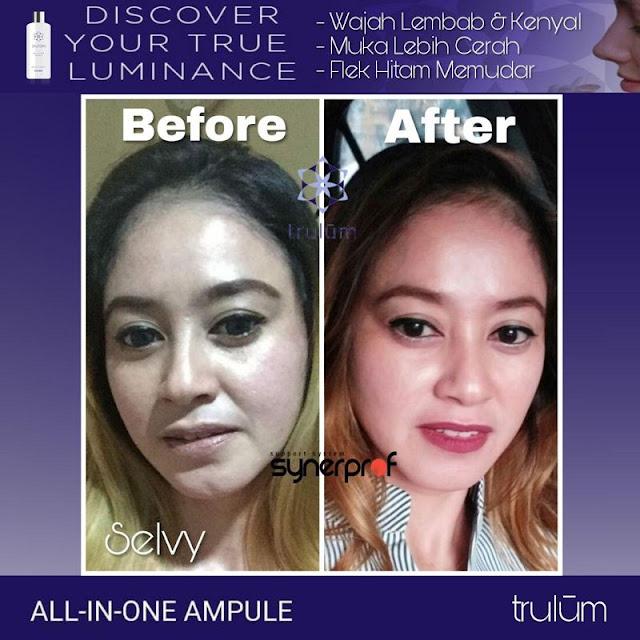 Bebas Bopeng Bekas Jerawat, Flek Hitam Tanpa Harus Laser Atau Ke Tempat Skin Care Di Sukaresmi Cianjur