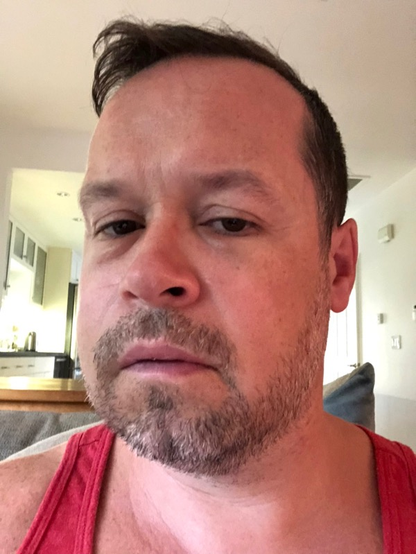 Post pinhole gum surgery