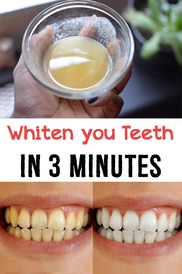 Whiten your teeth in 3 minutes