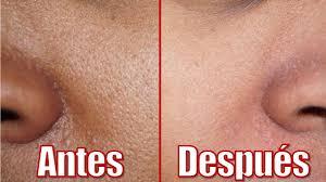 eliminar los poros abiertos de la cara y nariz
