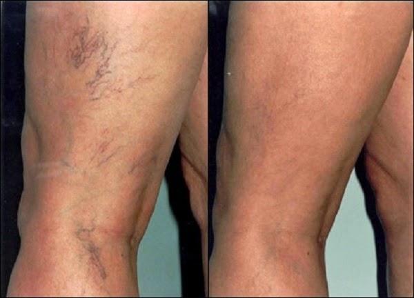 2c42a99ab Ele foi criado especificamente para as pessoas que sofrem não só com  aparência estética que as varizes trazem ao corpo