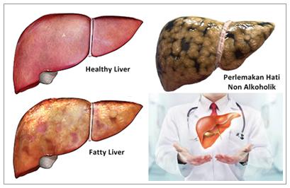 Cara Mengobati Perlemakan Hati (Fatty Liver)