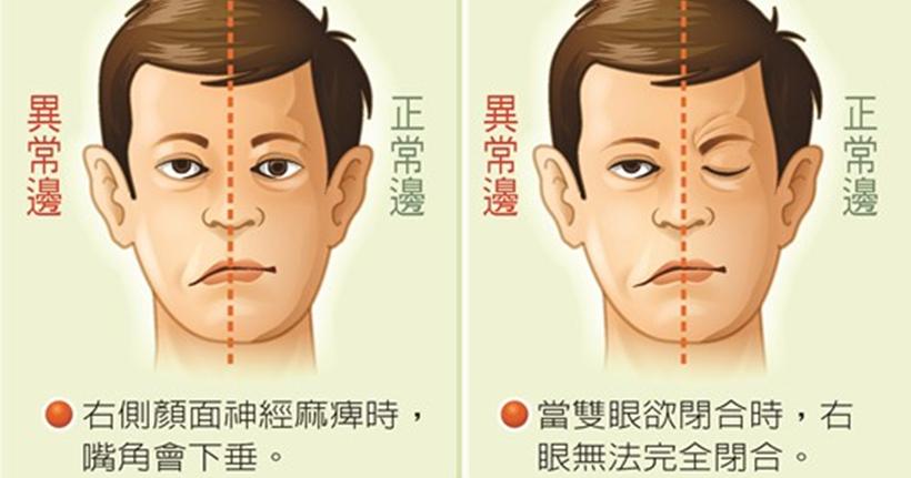 臉歪嘴斜 | 香港腦脊中風及痛癥顧問