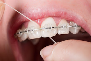 braces, flossing, flossing braces, white teeth, brace face, metal braces, plastic braces