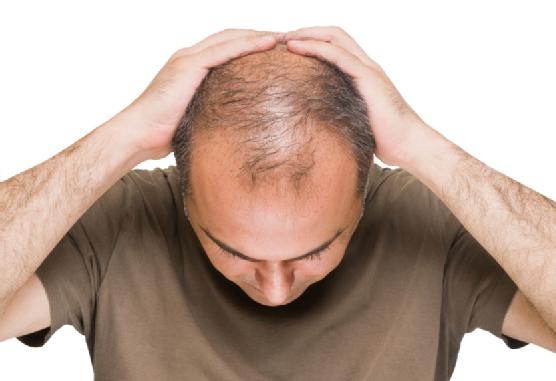 mengatasi rambut rontok dengan minyak argan