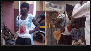 Man Seen In Imo Moving About With Blood Stain And Knife Stuck In His Stomach 1