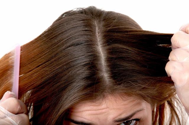 10 Cara Alami Menghilangkan Kutu Rambut Yang Paling Ampuh
