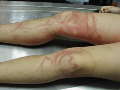 http://2.bp.blogspot.com/-AXObqPhEoLw/Ta-oWDp42ZI/AAAAAAAAB2o/0jOFFjx3-sw/s400/109340_korban-tewas-akibat-sengatan-box-jellyfish-atau-ubur-ubur-kotak-.jpg