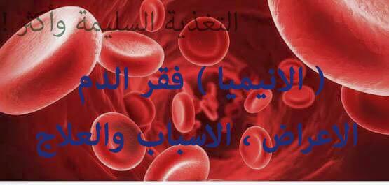 ( الانيميا ) فقر الدم - الاعراض ، الاسباب والعلاج  - التغذية السليمة واكثر