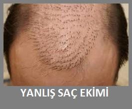 yanlış saç ekimi düzeltme ameliyatı