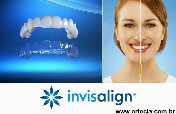 aparelho dental transparente
