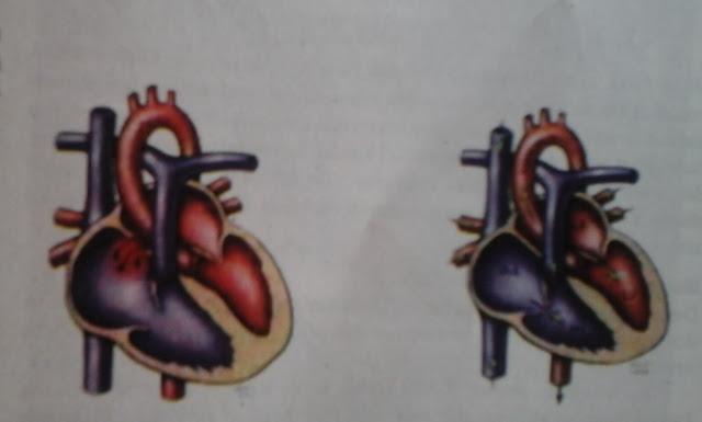 defek septum atrium sekundum & jantung normal