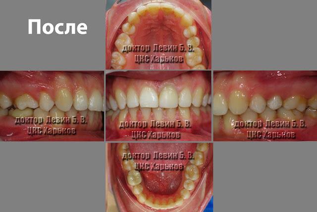 Фото зубов после проведения лечения рецидива