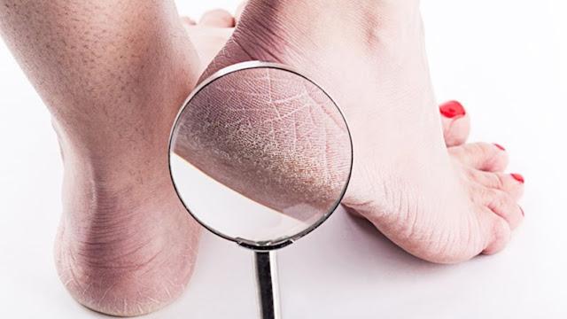 أسباب وأعراض تشقق القدمين وكيفية علاجها .