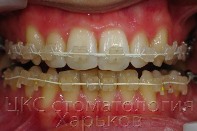 эффект чистки зубов и брекетов