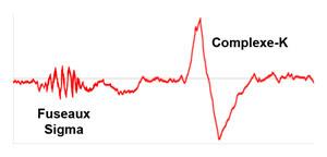 Fuseaux Sigma / sleep spindles et Complexe-K