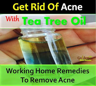 Tea Tree Oil For Acne, Tea Tree Oil Acne, How To Use Tea Tree Oil For Acne, Is Tea Tree Oil Good For Acne, Tea Tree Oil And Acne, How To Get Rid Of Acne With Tea Tree Oil,