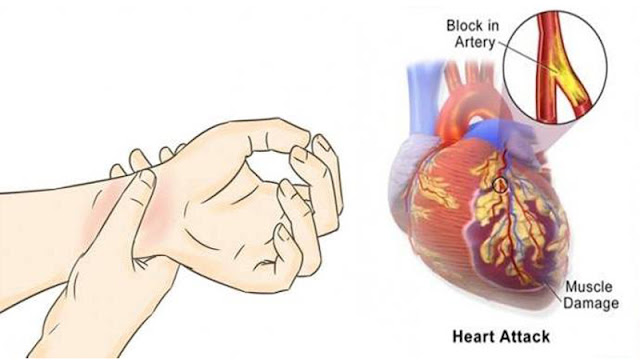 2ucj84r AVOID HEART ATTACK BY DOING THESE FIVE EASY THINGS
