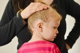 untuk mengobati eksim di daun telinga