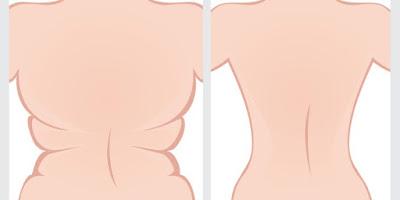 Voici comment vous débarrasser de la graisse du ventre rapidement !