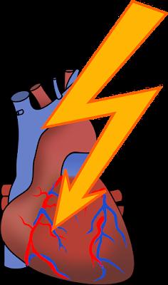 aritmia jantung, artimia jantung adalah, terapi aritmia jantung, penyebab aritmia jantung, obat aritmia jantung, aritmia jantung pdf,jantung, penyakit jantung, kesehatan jantung,