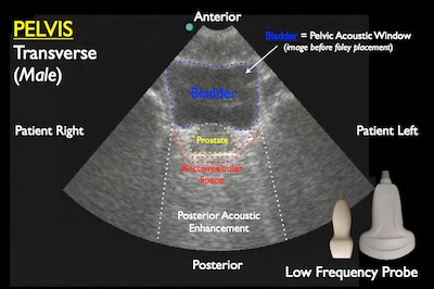 RUSH protocol: Rapid Ultrasound for Shock and Hypotension