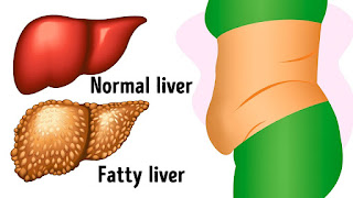 9 Signs That Your Liver Is Sick