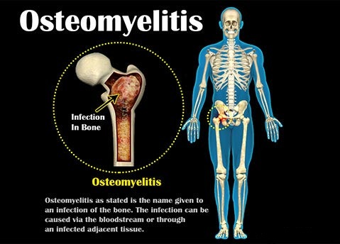 Prepare for Medical Exams : Osteomyelitis - Case Discussion And Questions