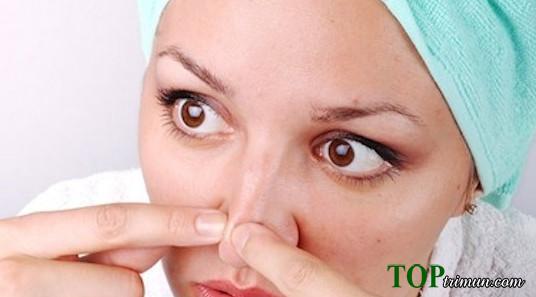 Nguyên nhân và cách điều trị mụn đầu đen, mụn đầu trắng