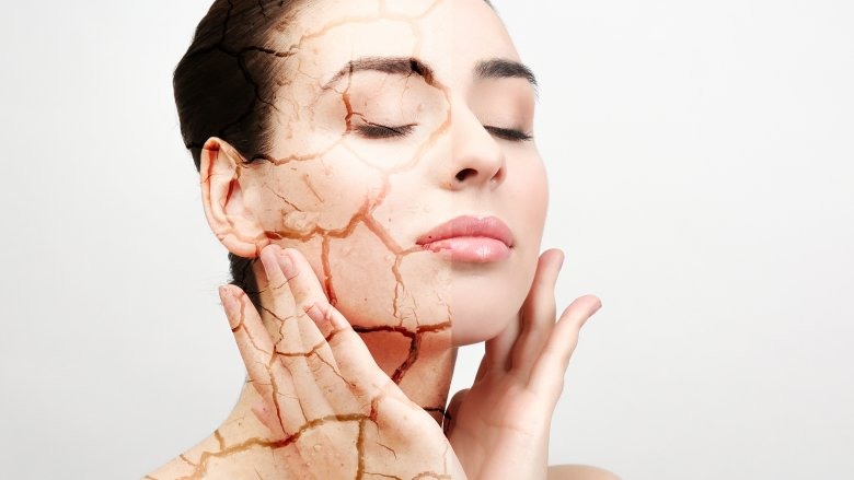 Get ready for dry, itchy skin