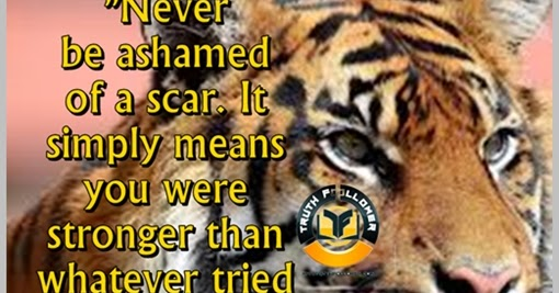 Never Be Ashamed Of A Scar, Stronger Quotes