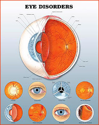 Eye Diseases and Disorders