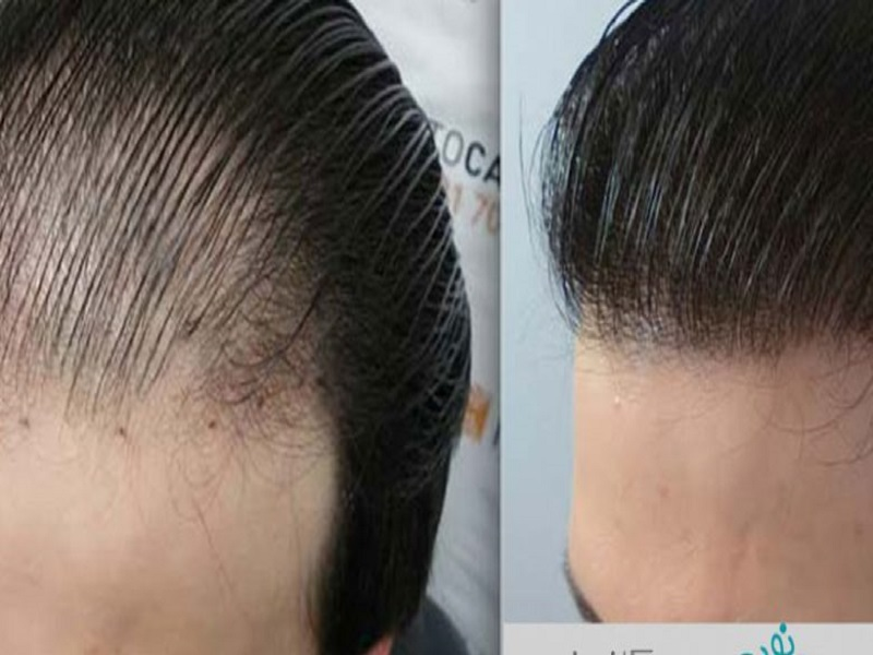 Differences And Benefits Of Hair Weaving And Hair Grafting Latest