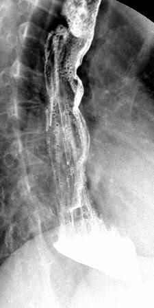 esophagram with achalasia