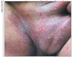 jual obat gatal kulit pada buah zakar di apotik