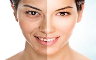 cara mencerahkan wajah kusam secara alami