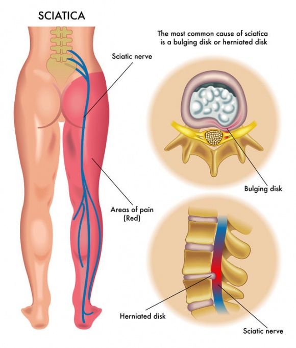 The treatment of Sciatica pain and other natural ways to help you get relief.