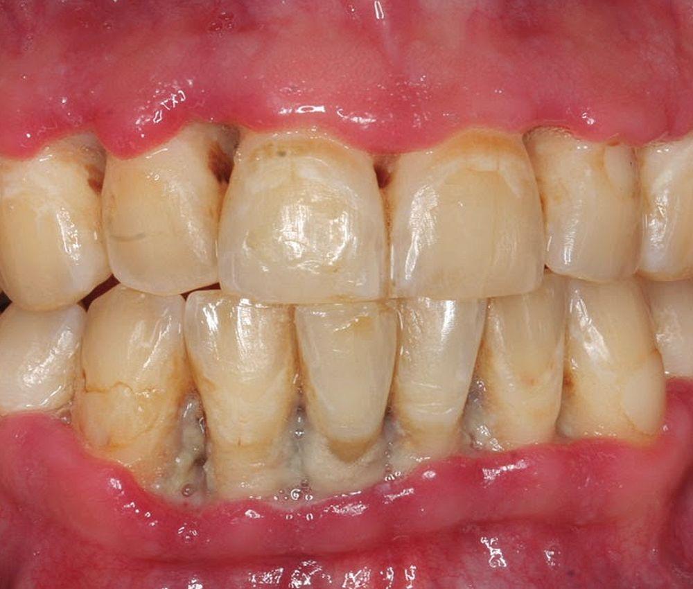 necrotizing-ulcerative-gingivitis