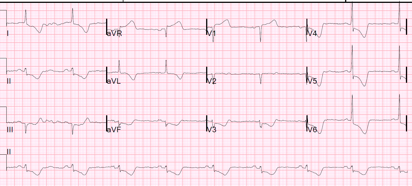 dr smith s ecg blog the 4 physiologic etiologies of shock and the