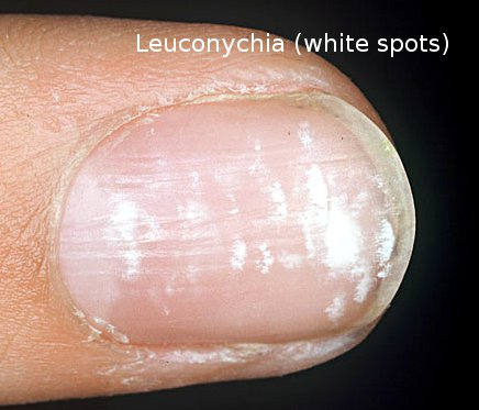 Does Nail Polish Cause White Spots On Toenails