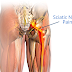 Sciatica Pain And Treatment