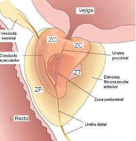lobulos laterales de la prostata