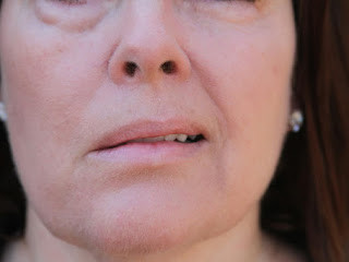 The Treatments and Symptoms of Bell's Palsy
