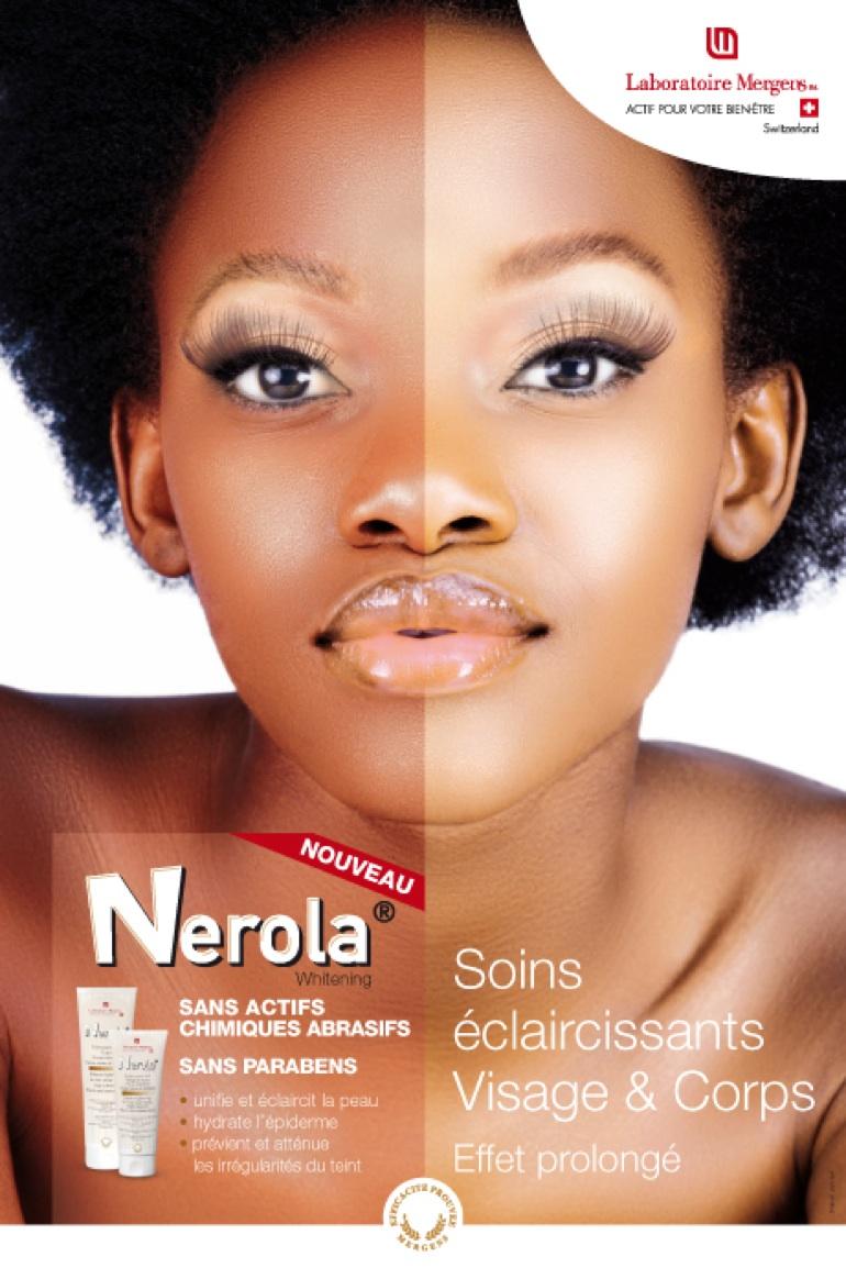 Skin lightening creams, gels & lotions – anti-dark spots weapons