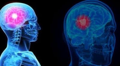 Gejala Kanker Otak Pada Wanita Yang Wajib Diketahui