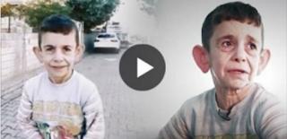Αυτό το 7χρονο παιδί είναι παγιδευμένο μέσα στο σώμα ενός γέρου: «Θα 'θελα να 'μαι όμορφος, σαν τ' άλλα παιδιά»