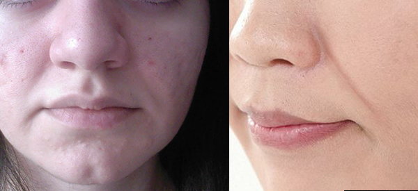 Beauty Gadgets: Sagging Cheek, Double Chin English Review